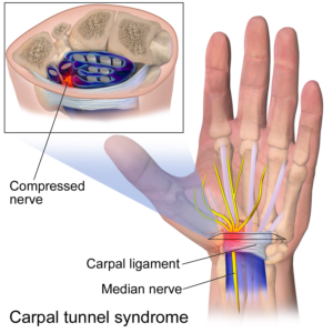 Carpal Tunnel Syndrome image